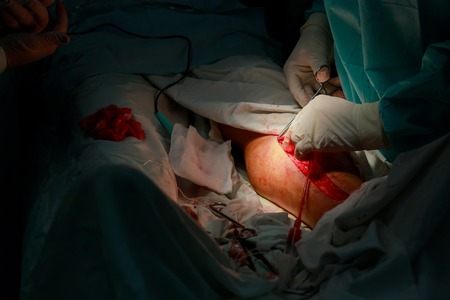 varicose veins, vascular surgery wound on the leg with surgical tools during the operation Stock Photo