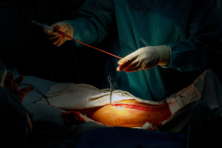 A surgeon performs vein separation for Coronary Artery Bypass Grafting operation in the operating room