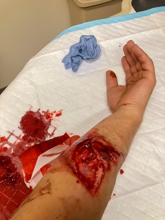 Bloody hand cutted off by saw in injured hand after accident at work in the carpentry workshop. Stockfoto