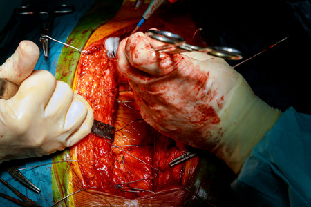 Surgical tools with closing chest after heart surgery