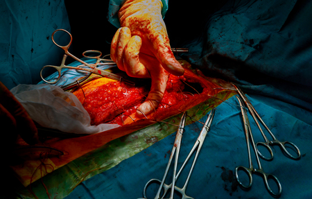 Doctor doing chest after surgery on the heart with surgical tools