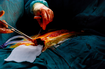 A doctor is sewing skin after a on open heart surgery in operating room