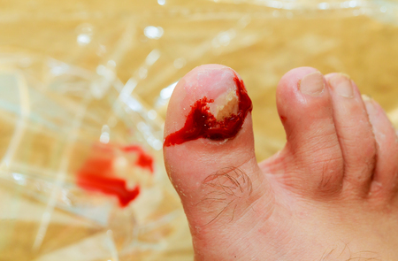 Detail of male leg with damaged toes nail on right foot man Stock Photo