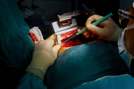 Surgical instruments for open heart surgery the process of cardiac surgery
