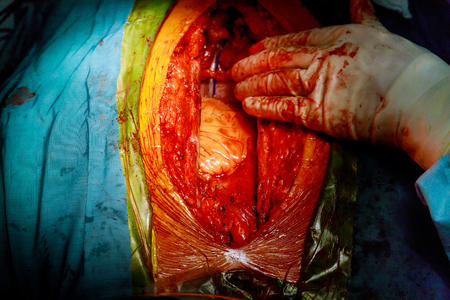 Surgeon hands the open heart surgery procedure