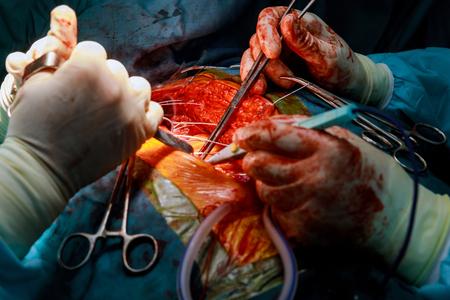 Hospital surgical intervention open heart surgery procedure