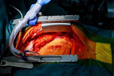 Herz bereit für die Operation Koronararterien-Bypass-Operation Standard-Bild