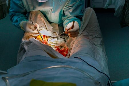 Operating room in surgeons team working on leg of patient