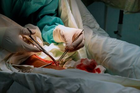 Preparation of surgeons in operating room with surgery for leg equipment of surgeons working