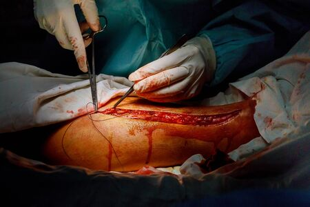 Operation of varicose veins leg surgery by surgeon in operating room operation medical procedure 写真素材