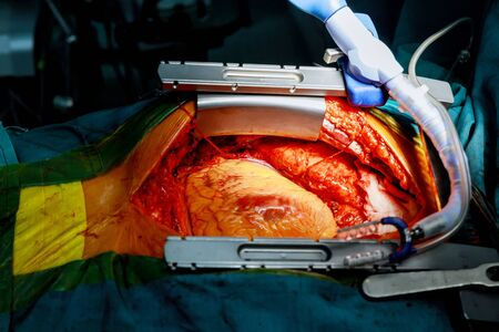 Heart surgery. Open heart surgery suture greater saphenous vein coronary artery bypass surgery