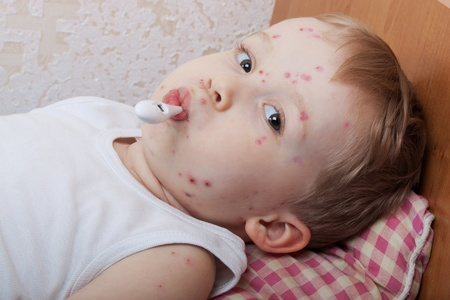 The boy, a sick chickenpox, temperature measurement 스톡 콘텐츠