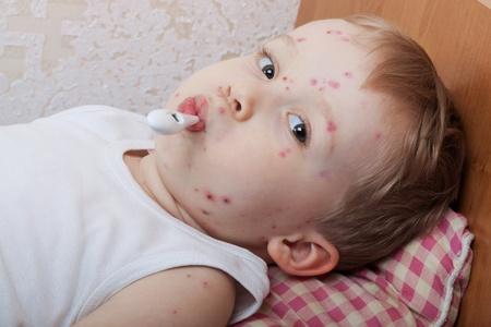 varicela: El ni�o, un enfermo de varicela, la medici�n de temperatura Foto de archivo