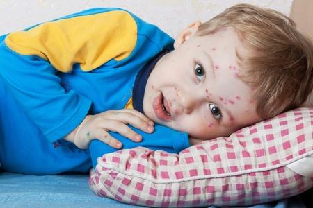 varicela: Retrato de un ni�o sonriente enfermos de varicela Foto de archivo