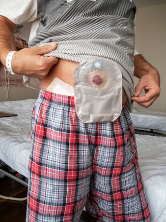 Patient demonstrates ileostomy on his stomach while standing in a hospital ward. Foto de archivo