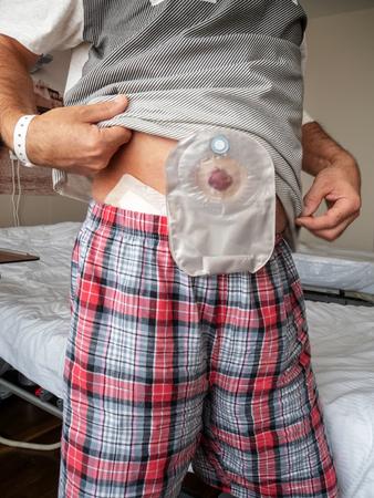Un patient présente une iléostomie sur le ventre alors qu'il se tient debout dans une salle d'hôpital. Banque d'images