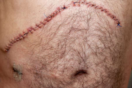 Postoperative suture after oncological surgery on the liver, abdominal surgery, at the bottom left of the hole for drainage and an old scar from the iliostomy