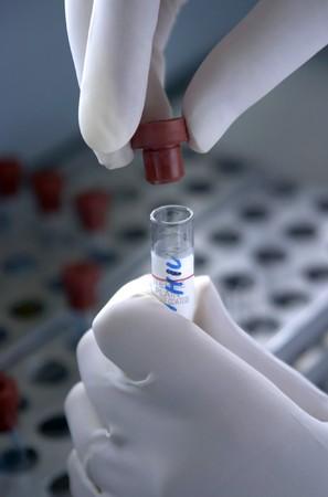 tubo de ensayo: cerca del tubo de ensayo de laboratorio y parte