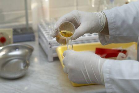 close-up de los trabajadores en manos guantes y prueba de orina en el laboratorio