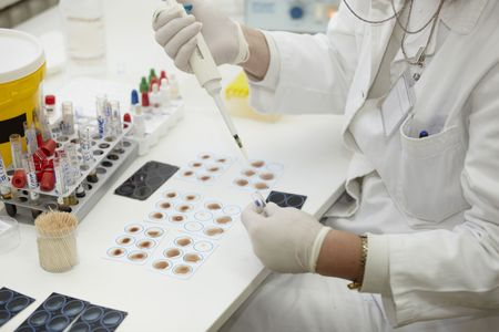 tubo de ensayo: Close up de trabajador m�dico en laboratorio