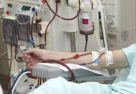 donacion de organos: paciente ayud� durante el per�odo de sesiones de di�lisis en el hospital  Foto de archivo