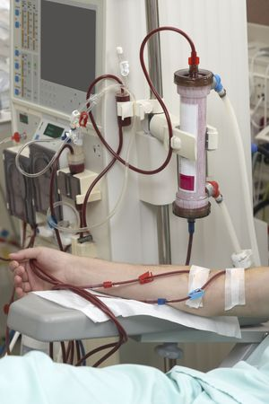 patient helped during dialysis session in hospital photo