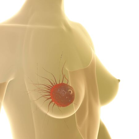 breast examination: Breast Cancer - 3d rendered illustration Stock Photo