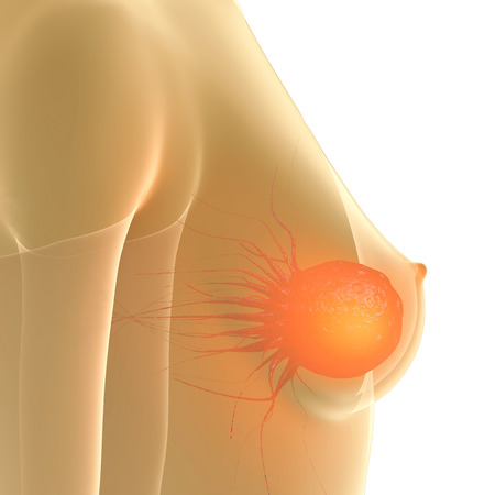 cancer screening: Breast Cancer - 3d rendered illustration Stock Photo