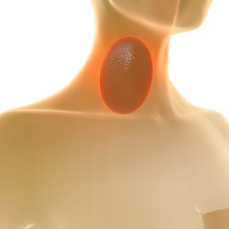 membranes: Sore Throat - 3d rendered illustration