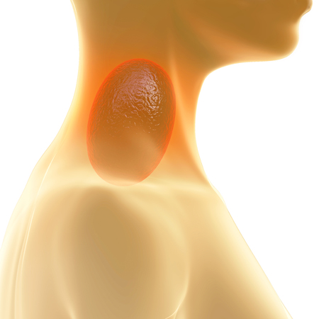 lymph: Sore Throat - 3d rendered illustration
