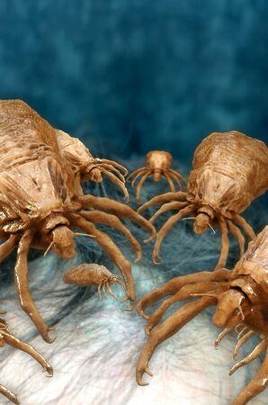Lice - 3d rendered illustration