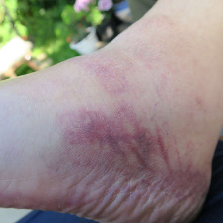 blue and red swollen feet, disease Standard-Bild