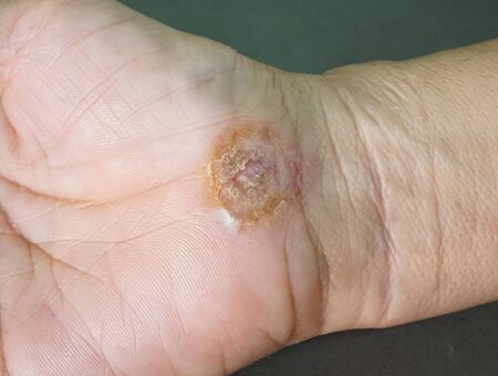 applied: Wound care process on woman hand, applied with medical wound solution, selective focus