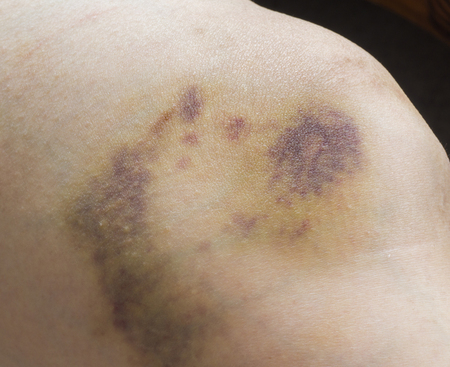 Close up of pain bruises on woman leg Stock Photo
