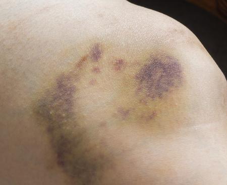 hematoma: Close up of pain bruises on woman leg Stock Photo