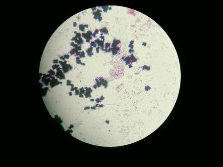 Image of Escherichia coli obtained through a light microscope. For any purprose. Standard-Bild - 122311944