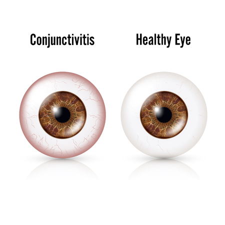 edema: Conjunctivitis. Red Eye. Healthy Eye And Eyeball with Conjunctivitis. Vector Illustration