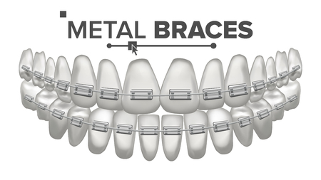 Metal Braces Vector. Human Jaw. Braces On Teeth. Smile With Braces. Çizim