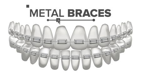Metal Braces Vector. Human Jaw. Braces On Teeth. Smile With Braces. Illustration