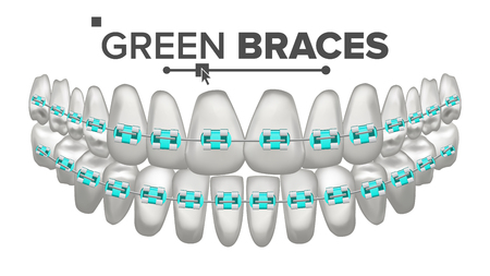 Green Child Braces Vector. Tooth And Dental Braces. Human Jaw.