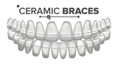 Ceramic Braces Vector. Human Jaw. Dentist, Orthodontist Poster Element. Isolated Illustration Illustration