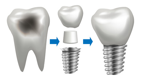 Dental Implant Vector. Tooth With Caries. Health Tooth Implant. Dental Clinic Stomatology Flyer.