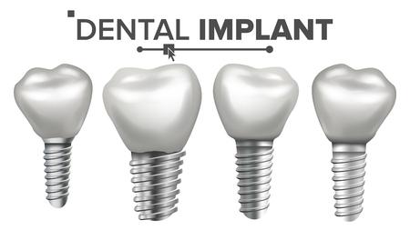 Conjunto de implantes dentales Vector. Set de dientes. Salud dental. Estomatología Odontología. Diseño de blanqueamiento. Ilustración aislada realista Ilustración de vector