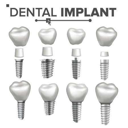 Dental Implant Set Vector. Implant Structure. Crown, Abutment, Screw. Care Stomatology Realistic Isolated Illustration