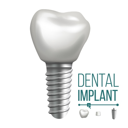 Dental Implant Vector. Molar Human Teeth. Dental Clinic Stomatology Flyer. Realistic Isolated Illustration  イラスト・ベクター素材