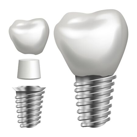 Dental Implant Vector. Side View. Graphic Design Element. Tooth Paste Poster. Realistic Isolated Illustration
