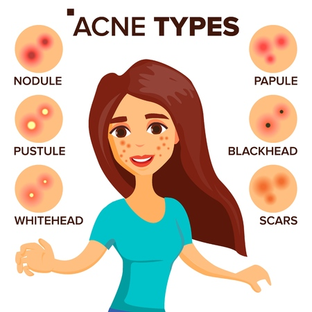 Acne types vector girl with acne skin care. Treatment, healthy, nodule whitehead isolated flat cartoon character illustration.