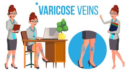 Jambes féminines en chaussures à talons hauts avec vecteur de varices. Illustration isolée