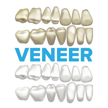 Veneer Vector. Dental Veneer Concept. Medical Banner Design Element. Tooth Before After. Illustration Vettoriali