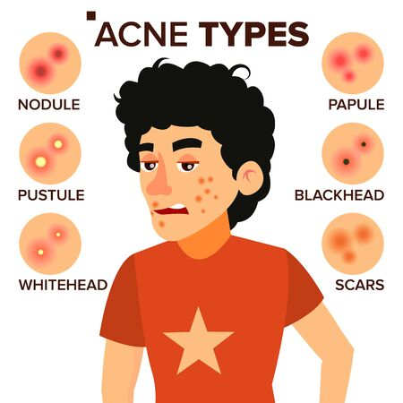 Acne Types . Boy With Acne. Pimples, Wrinkles, Dry Skin, Blackheads. Isolated Flat Cartoon Illustration